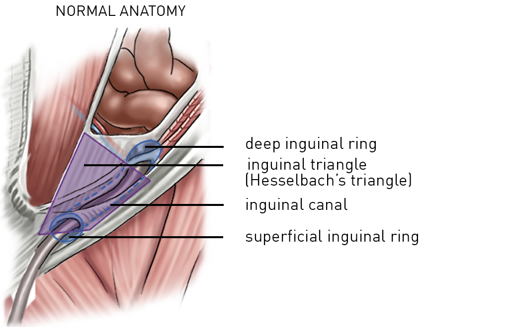 14guinal Hernianeral Anatomytitles1 Incision Academy