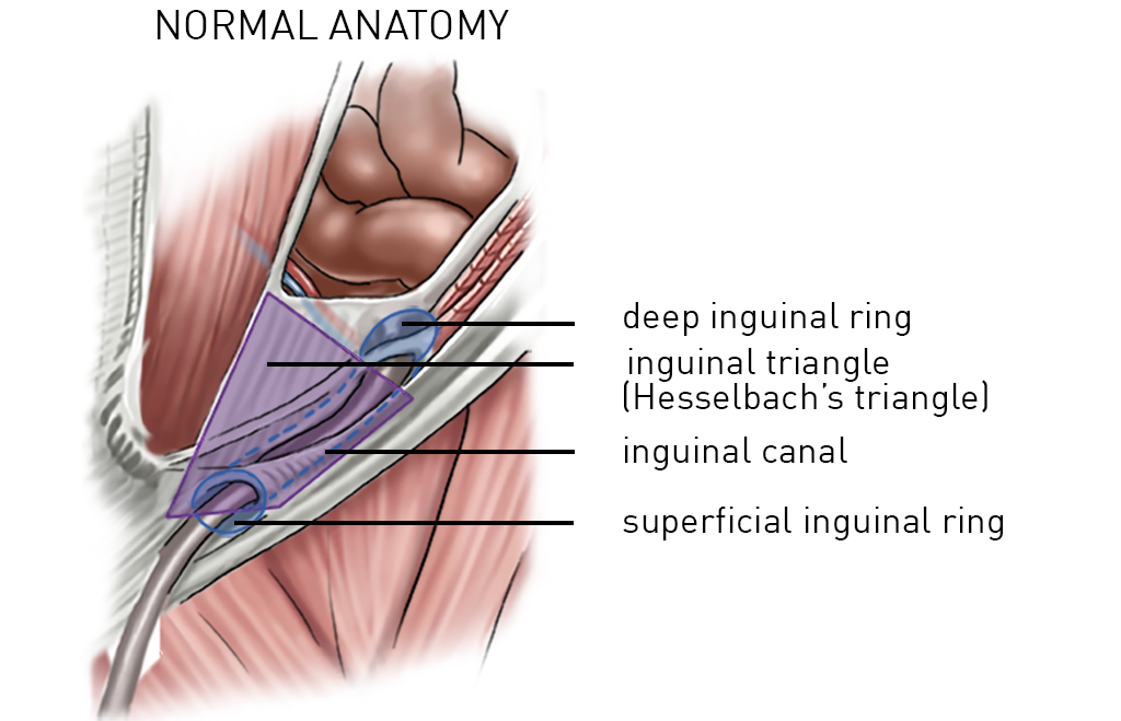 14.Inguinal-hernia.general-anatomy.titles2 - Incision Academy